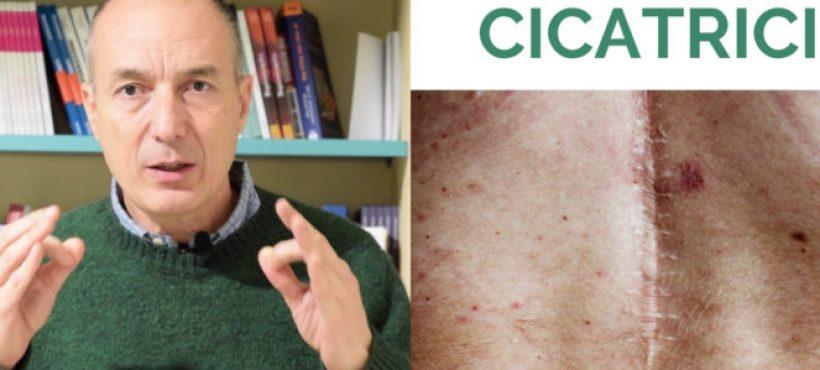 16x9 anteprima video il trattamento delle cicatrici Massimo Valente